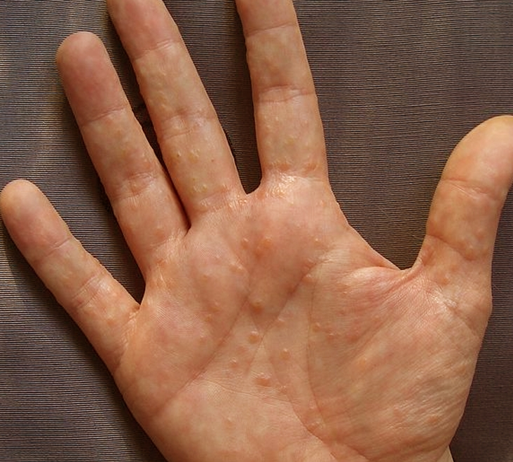 Dyshidrotic Eczema - Pictures, Treatment, Causes, Contagious, Symptoms