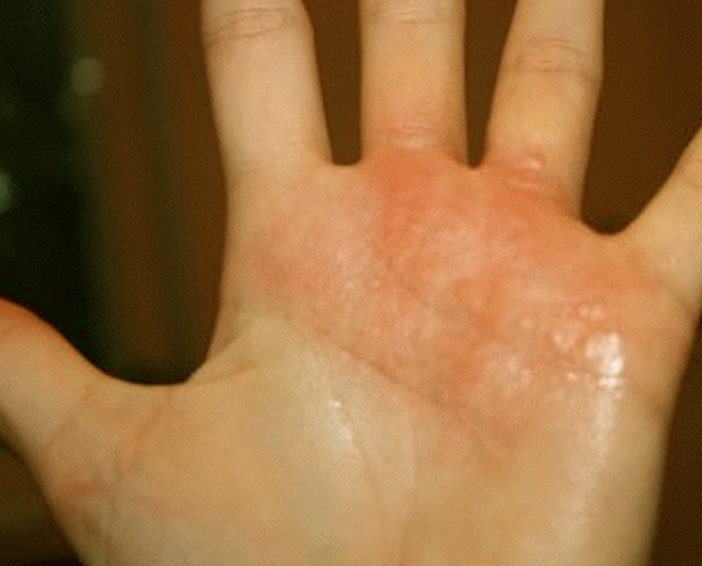 eczema hands blisters - photo #33