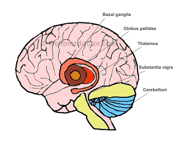 Basal Ganglia Hemorrhage Symptoms Prognosis Treatment Diagnosis