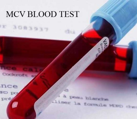 mcv blood test