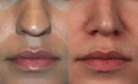 bulbous nose causes pictures reduction without surgery cost