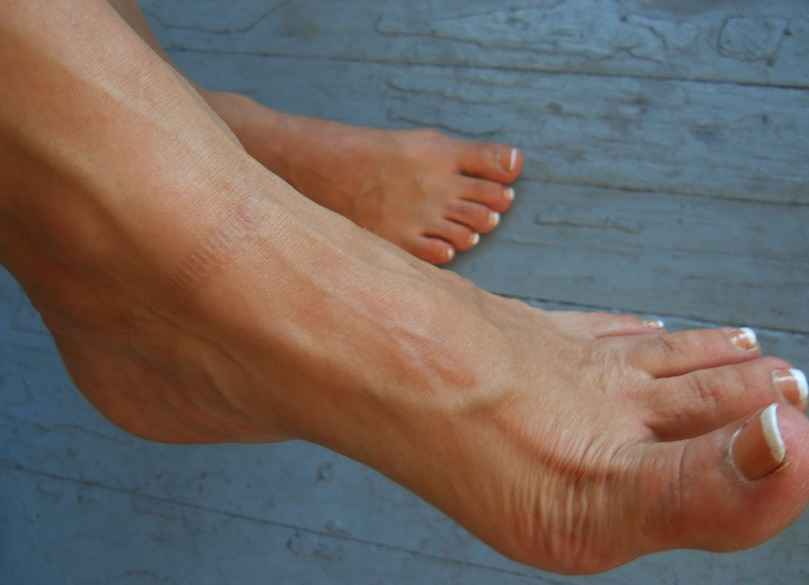 bulging veins in hands and feet causes