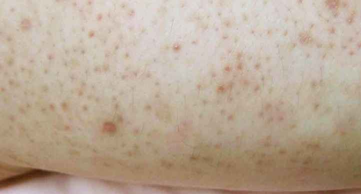 Eczema varicose: how to protect yourself from this ailment